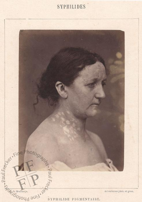 A woman suffering from secondary syphilis